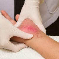 Docteur Vladimir MITZ chirurgien Paris 6 75006 chirurgie reparatrice chirurgie de la main