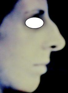 Docteur Vladimir MITZ chirurgien Paris 6 75006 chirurgie esthetique chirurgie du visage Chirurgie du profil facial Profiloplastie avant