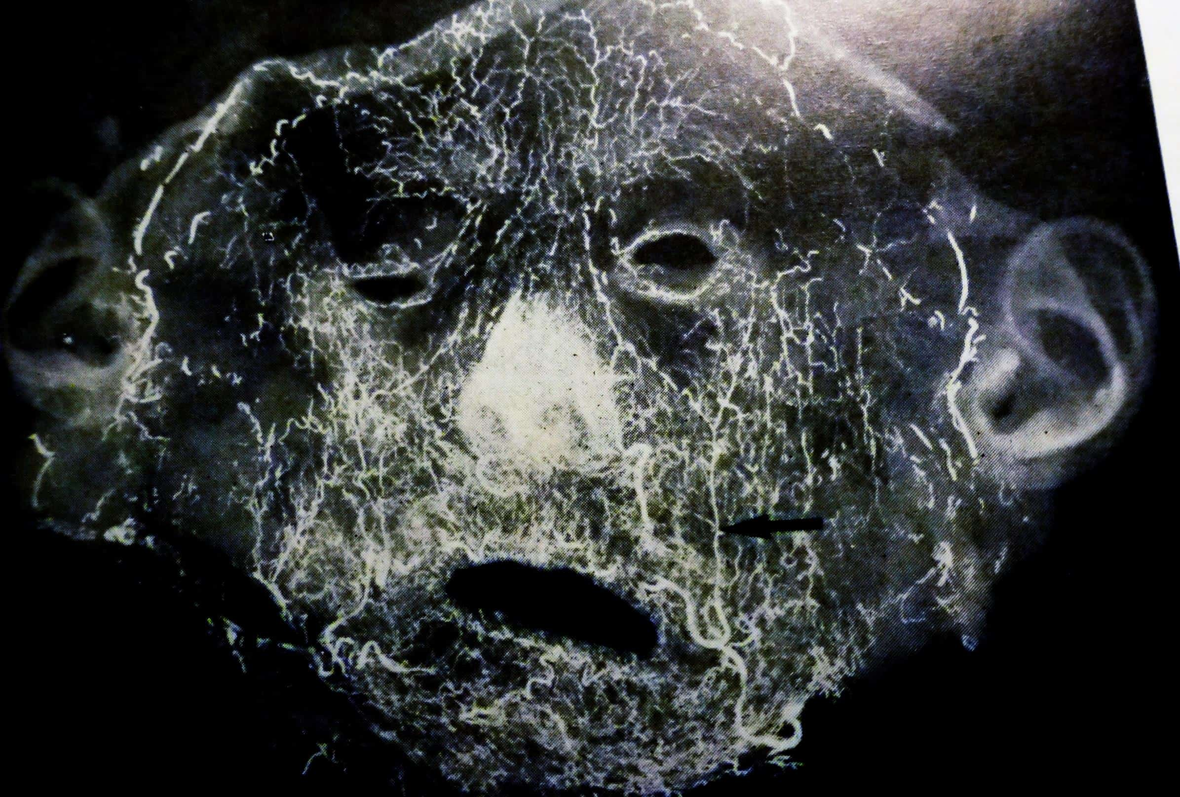 les artères du visage