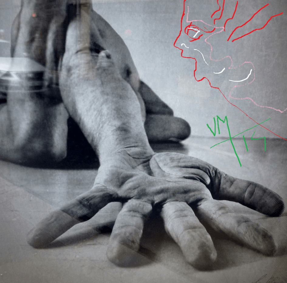 Docteur Vladimir MITZ chirurgien Paris 6 75006 chirurgie reparatrice chirurgie de la main blessure bricolage