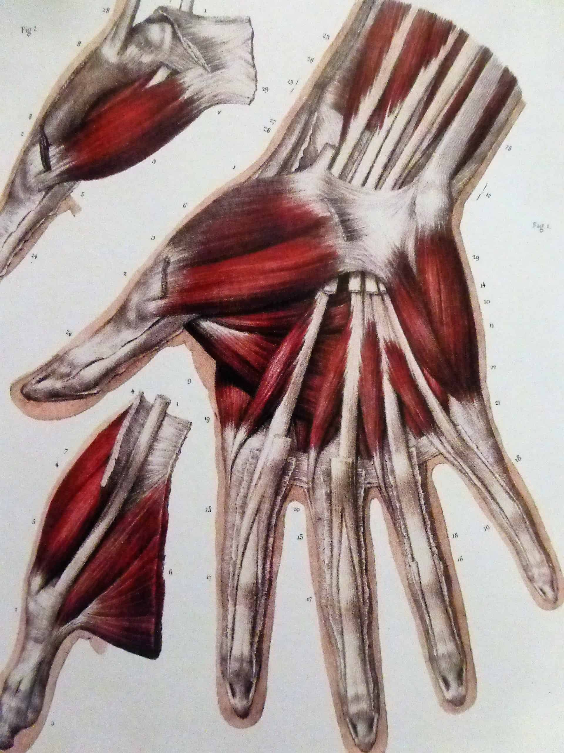 chirurgie de la main chirurgie reparatrice muscles interosseux
