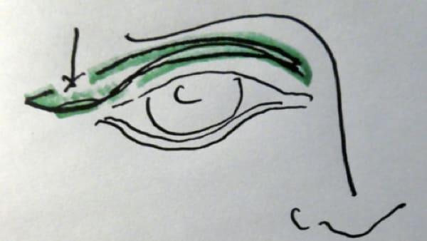 paupiere dessin vladimir mitz chirurgie de la paupiere paris blepharoplastie paris docteur vladimir mitz chirurgien esthetique 75006 chirurgien esthetique paris 6